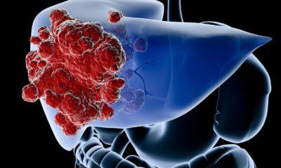 Karaciğer kist hidatiği nedir?