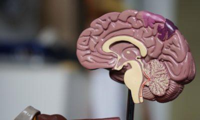 Beyin ölümü ile başlayan süreç nasıl devam eder?