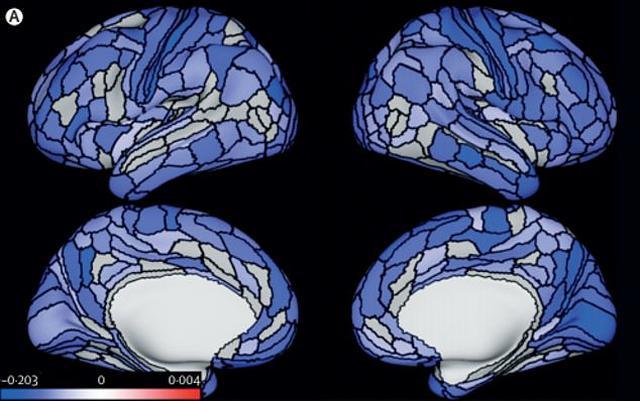 Suçluların beyinleri normalden daha küçükmüş