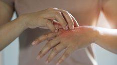 Corona virüs nedeniyle elleri dezenfekte ederken hasar gören...