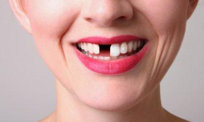 Eksik dişler gülüşü kısıtlıyor