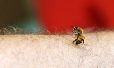 Arı sokmasına ne iyi gelir? Arı sokmasında ne yapılmalı?