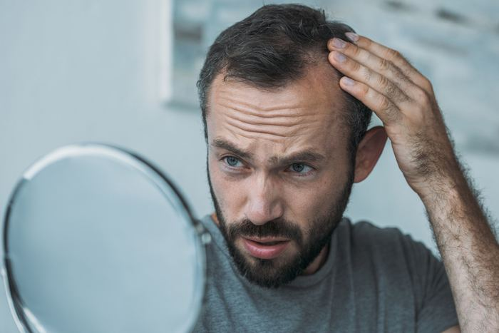 Saç ekimi ile doğal görünen saçlara kavuşmak mümkün: DHI yöntemiyle...