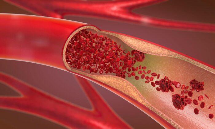 Trombosit düşüklüğü nedir? Trombosit (Plt) düşüklüğü neden olur,…