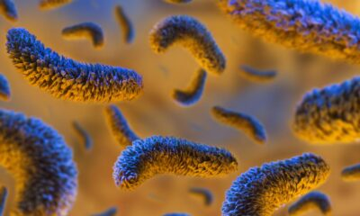 Salmonella nedir? Nasıl bulaşır? Tedavisi var mı?