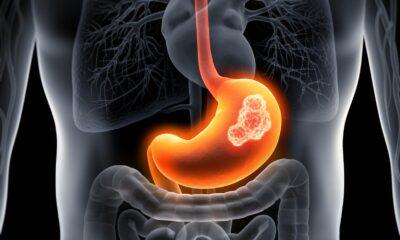 Demir eksikliği mide kanseri belirtisi olabilir