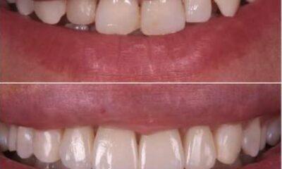 Kırık, ayrık ya da istenmeyen diş görüntüsüne mükemmel bir kalıcı…