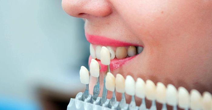 Kırık, ayrık ya da istenmeyen diş görüntüsüne mükemmel bir kalıcı...