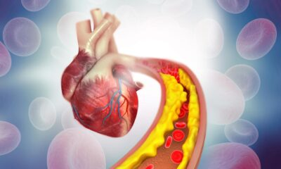 Kolesterolü düşürmede etkili olan besin takviyeleri belirlendi:…
