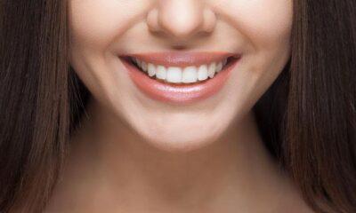 Diş tartarı ve diş taşlarından kurtulmak için en doğal yöntemler…